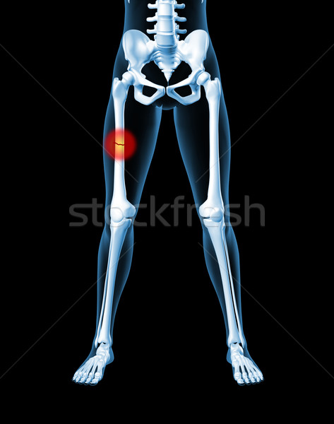 Female skeleton with broken leg bone Stock photo © kjpargeter