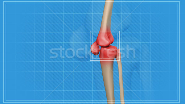 Human knee pain  Stock photo © klss