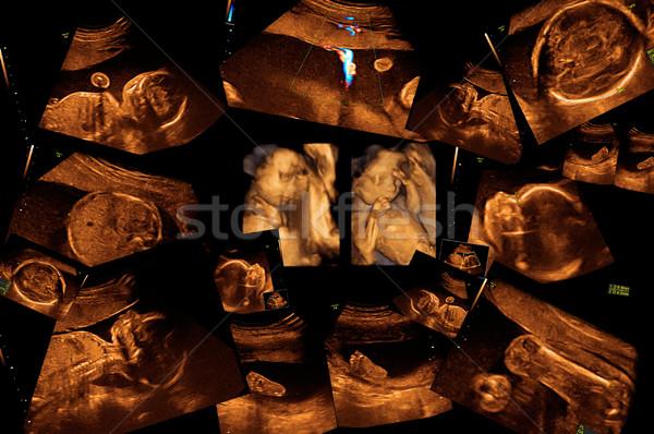 Baby ultrageluid afbeelding gezicht man hart Stockfoto © koca777