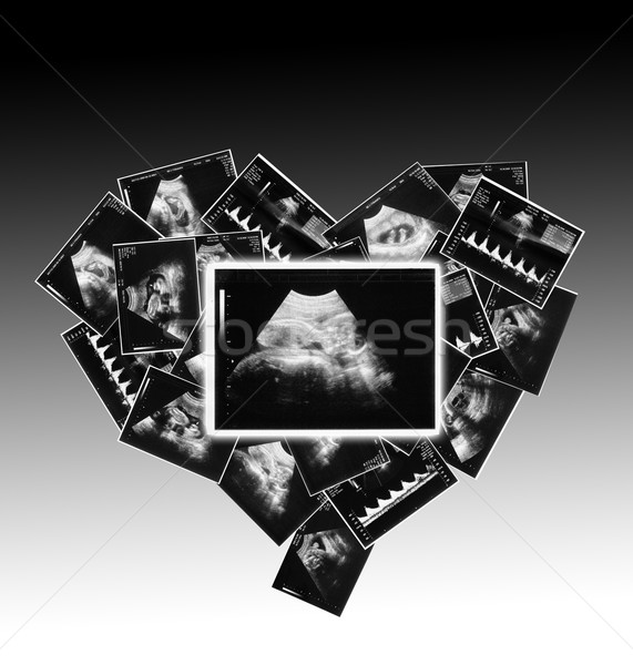 a small child on the ultrasound image Stock photo © koca777