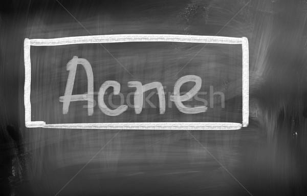 Acne Concept Stock photo © KrasimiraNevenova