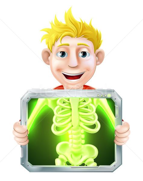 X-Ray Illustration Stock photo © Krisdog