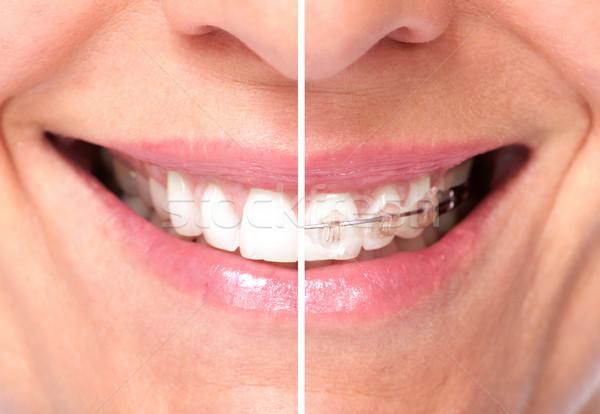 Healthy woman teeth. Stock photo © Kurhan