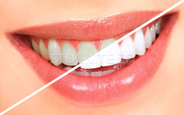 Teeth whitening Stock photo © Kurhan