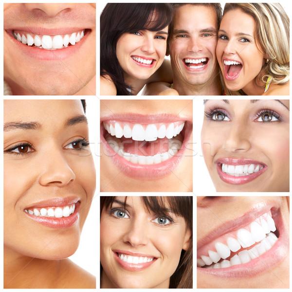Как сделать себе красивую улыбку 301