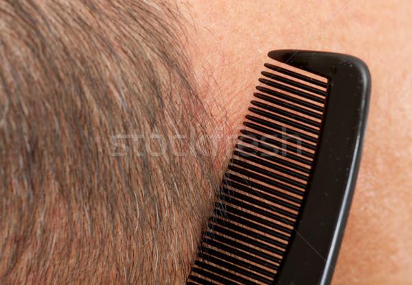 Mann Kopf Kamm Haar Verlust Stock foto © Kurhan