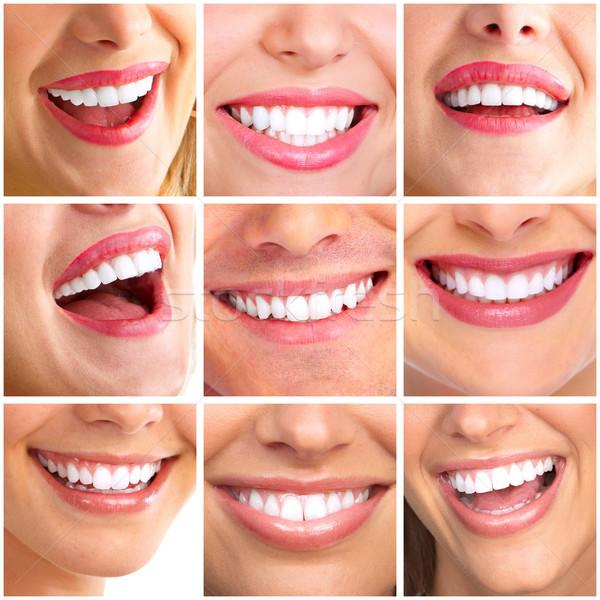Как сделать улыбку более широкой
