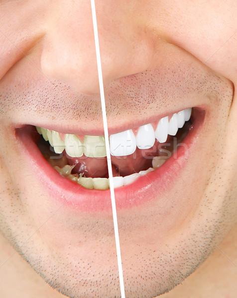歯 ホワイトニング 男性 歯 男 健康 ストックフォト © Kurhan