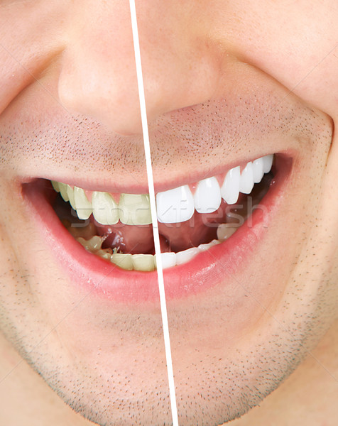 Stock photo: Tooth whitening