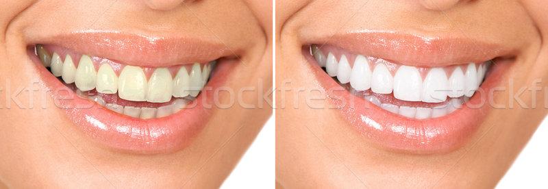 Smile of a beautiful young woman . Stock photo © Kurhan