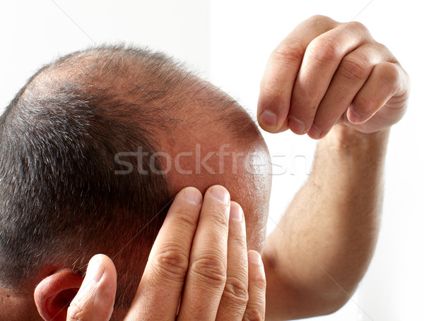 Hair loss. Stock photo © Kurhan