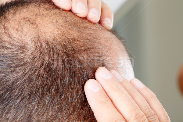 Hair loss. Stock photo © Kurhan