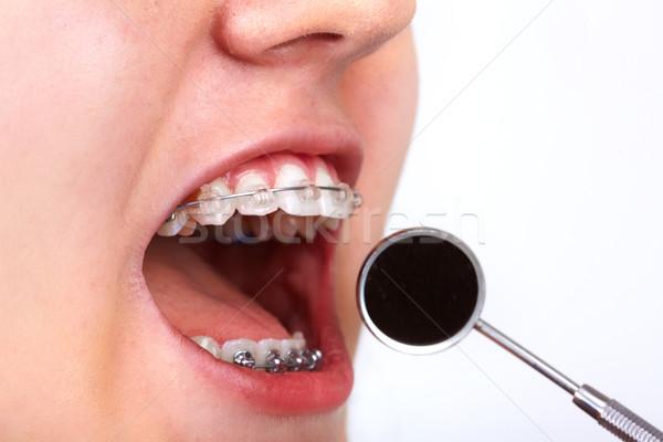 歯 歯列矯正の 歯科 医療 子 ストックフォト © Kurhan
