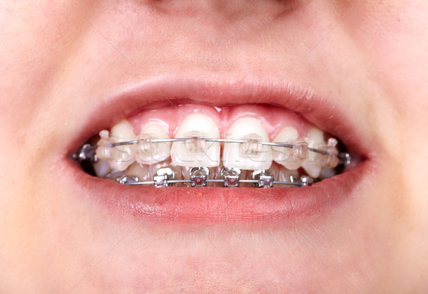 Dents orthodontique dentaires sourire médicaux Photo stock © Kurhan