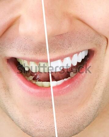 Stockfoto: Mooie · vrouw · glimlach · mooie · jonge · vrouw · tandheelkundige · gezondheid