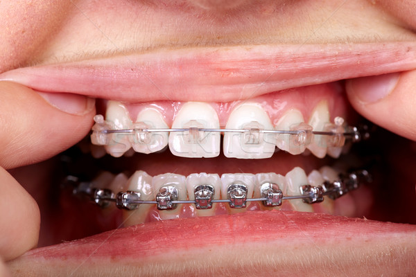 Teeth with orthodontic brackets. Stock photo © Kurhan