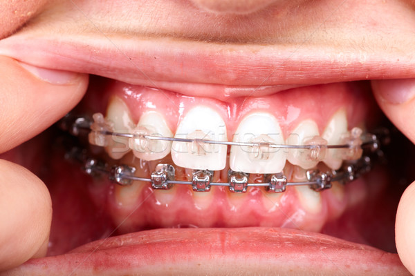 Teeth with orthodontic brackets. Stock photo © Kurhan