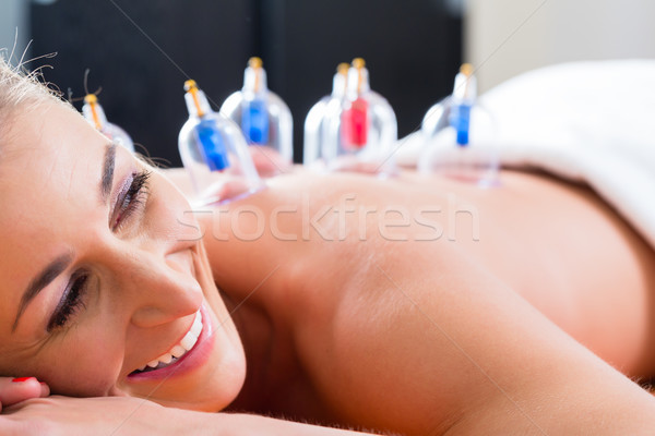 Alternative practitioner cupping woman Stock photo © Kzenon