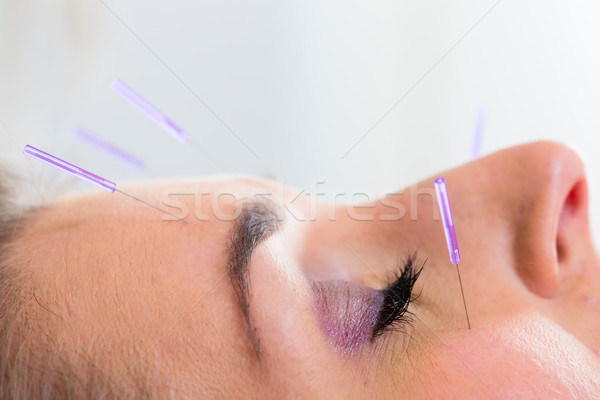 Woman at acupuncture with needles in face Stock photo © Kzenon