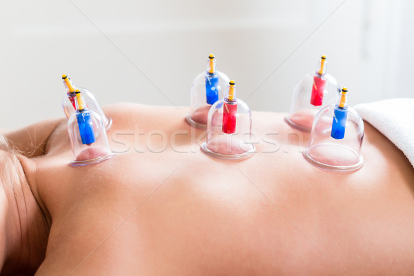 Stock photo: Alternative practitioner cupping woman