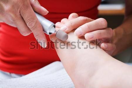 Stok fotoğraf: Kadın · test · glikoz · diyabet · kan
