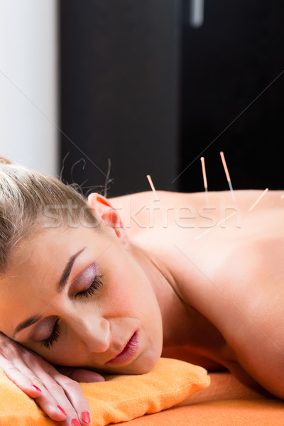 Woman at acupuncture needles in back Stock photo © Kzenon