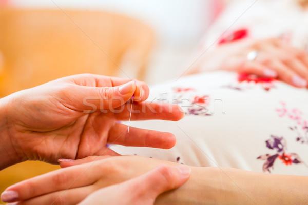 Midwife giving pregnancy acupuncture Stock photo © Kzenon