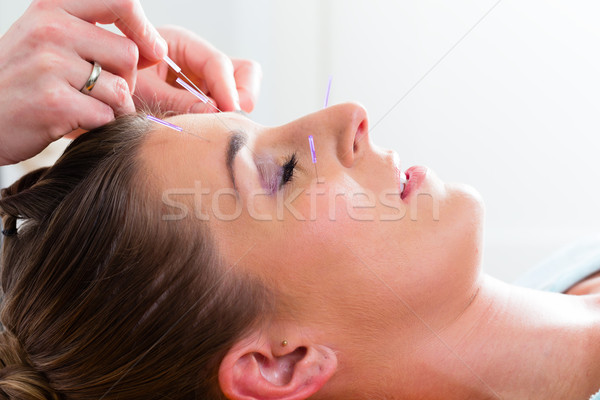 Terapeuta akupunktura igły kobieta leczenie strony Zdjęcia stock © Kzenon