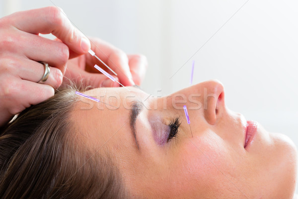 Therapist setting acupuncture needles Stock photo © Kzenon