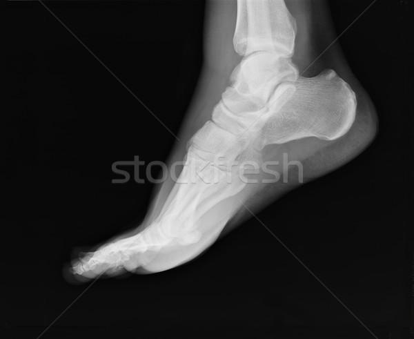 Piedi Xray caviglia congiunto visibile film Foto d'archivio © ldambies