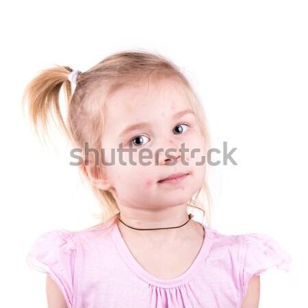 Stock foto: Krank · kleines · Mädchen · isoliert · weiß · Mädchen · Gesicht