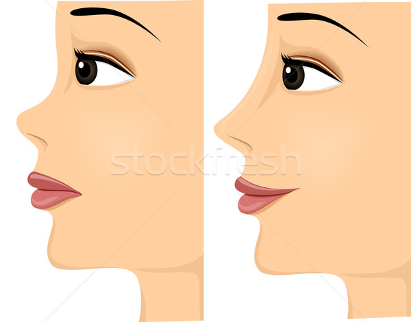 Girl Nose Before After Stock photo © lenm