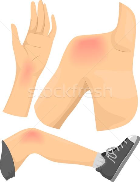Test fájdalom elemek illusztráció egészség piros Stock fotó © lenm