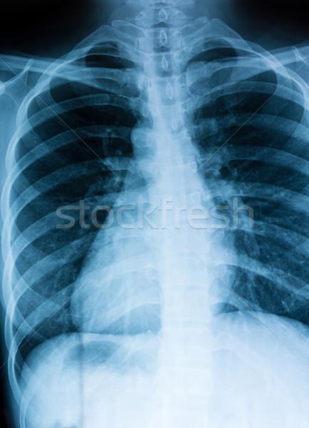 груди Xray сканирование больным человека пациент Сток-фото © leungchopan