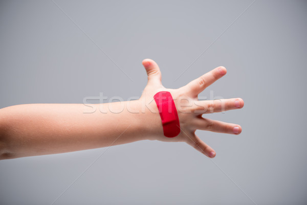 Red patch on hand  Stock photo © LightFieldStudios