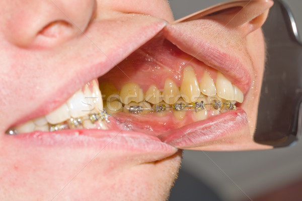 Dental braces on teeth - orthodontic treatment Stock photo © Lighthunter