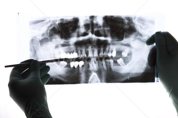 Közelkép panorámakép röntgenkép fogorvos tart kéz Stock fotó © Lighthunter