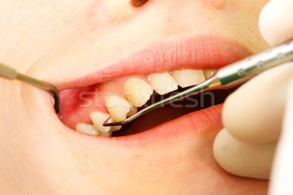 Dentaires médecin jeunes patient spéciale Photo stock © Lighthunter