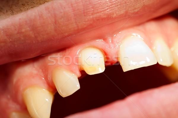Dentist 's work Stock photo © Lighthunter