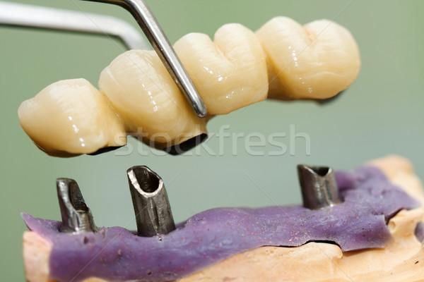Dentales implante cabeza puente dentista técnico Foto stock © Lighthunter