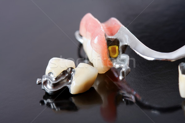 Part of a scheletal prosthesis that replaces missing teeth through special clamping systems and it c Stock photo © Lighthunter