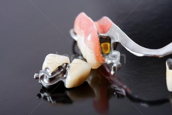 Protez kayıp dişler özel can Metal Stok fotoğraf © Lighthunter