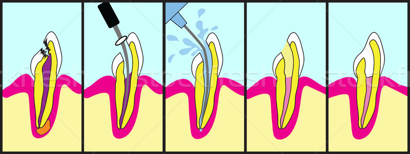 Root Canal Treatment Stock photo © Lighthunter