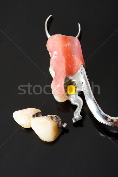 Substituição dentes prótese desaparecido especial lata Foto stock © Lighthunter