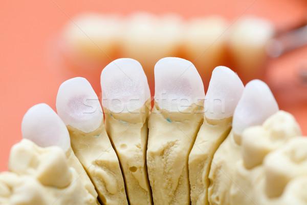 Foto stock: Dental · cerâmico · coroa · saúde · medicina · dentista
