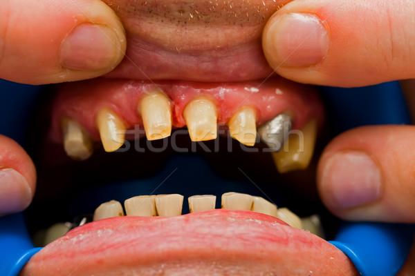 Dientes rehabilitación macro tiro diente dentales Foto stock © Lighthunter