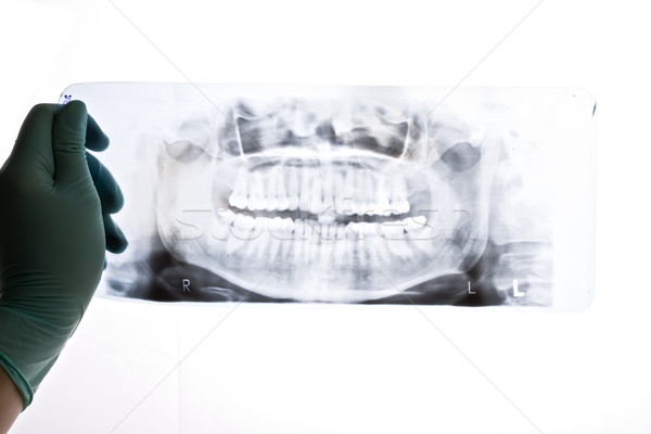 A closeup of a panoramic radiography, a dentist holding it in her hand, pointing with a probe Stock photo © Lighthunter