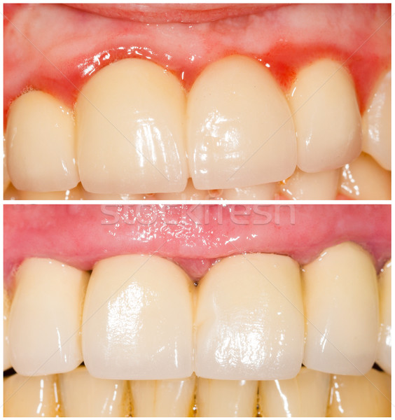 Buffing Teeth Tangent and with Shoulder Stock photo © Lighthunter