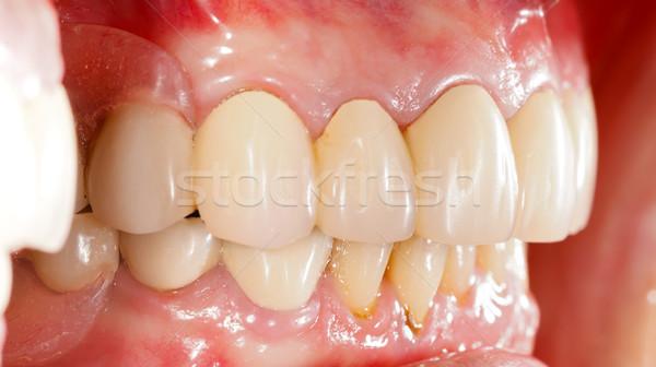 Dentales humanos boca salud medicina dientes Foto stock © Lighthunter