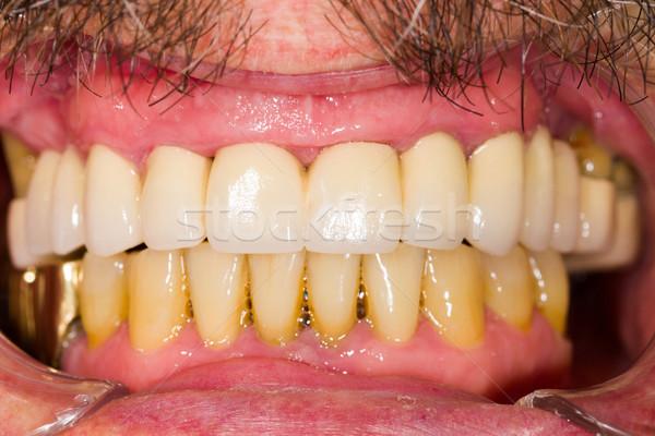 Dental Crowns and Bridges Stock photo © Lighthunter